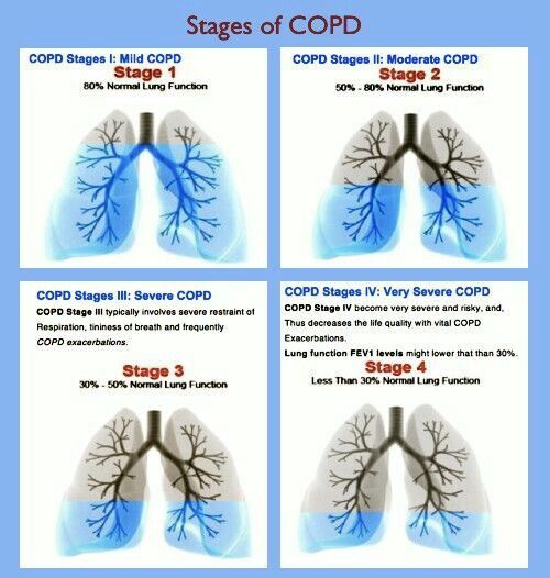 Stages of COPD: