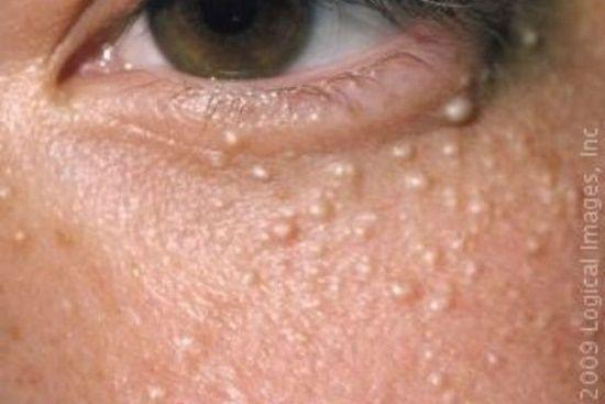 bolita de grasa debajo de la piel