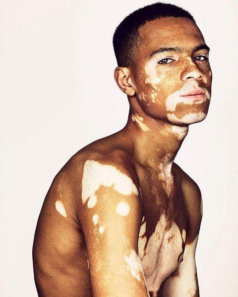 Pin By Why Oh Why Shawn On Him Vitiligo Treatment Vitiligo Vitiligo Model