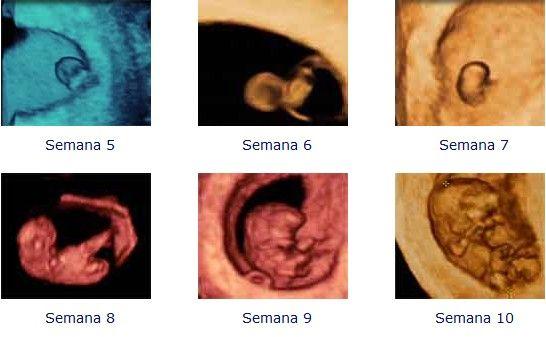 Ecografías Del Embrión Semana A Semana Son Preciosas Ecografía Embrión Embarazo Embarazada Primer Mes De Embarazo Embarazo Síntomas De Embarazo