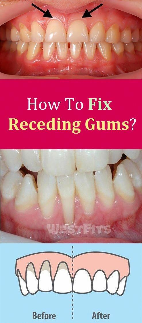 How To Fix Receding Gums Whooralcare Receding Gums Gum Care Oral Health Care