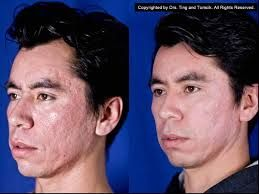 CO2 Laser Skin Resurfacing offers the modern and precise way to rejuvenate the skin. We have latest equipments for surgery.
