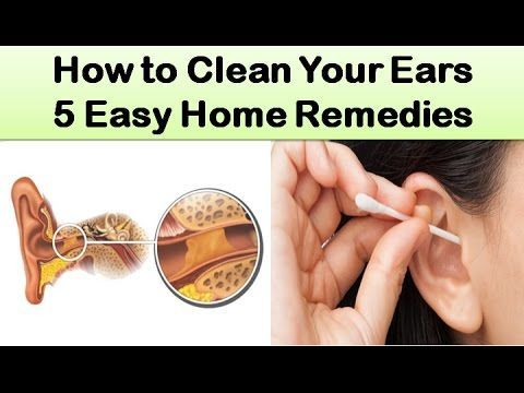 How To Clean Your Ears 5 Easy Home Remedies Earwaxblockage Cleaning Your Ears Dry Skin Routine Skin Healing