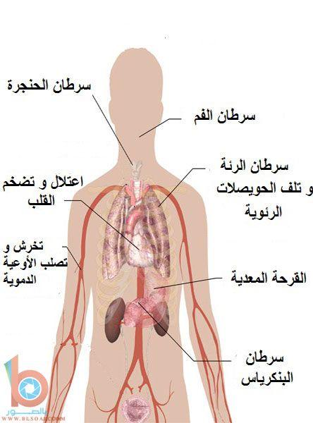 صور اضرار التدخين اضرار التدخين بالصور صور حول التدخين مضار التدخين أضرار التدخين صور ممنوع التدخين Health Diet Health Card Design