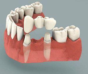 Câu hỏi:  Chào bác sỹ! Em bị tai nạn giao thông, nên bị mất 1 chiếc răng cửa. Em nghe nói trồng răng giả thường phải làm cầu răng. Không biết…