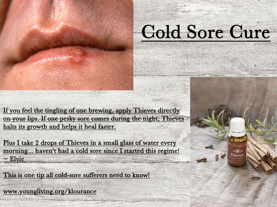Young Living Essential Oils - Cold Sore Cure    Want to Learn more about the oils/ Sign Up to be a distributor yourself/ or Just purchase oils, find out more information @ www.facebook.com/terri.kuzma  or TerriKuzma.marketingscents.com