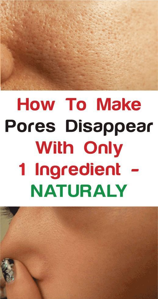 How To Get Rid Of Orange Peel Skin Texture