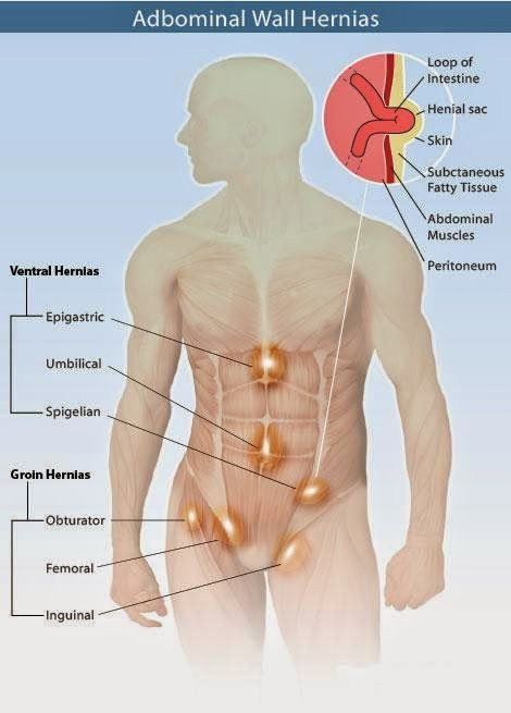 NATURAL TIPS TO TREAT HERNIA
