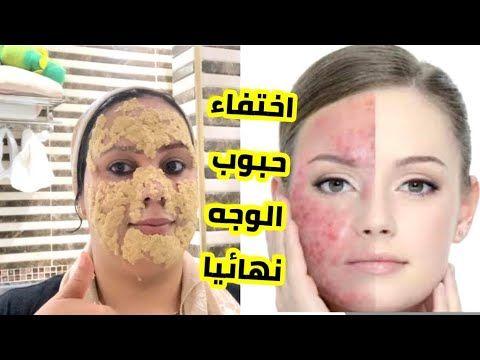 قولي وداعا لحب الشباب نهائيا روتين رائع لعلاج حبوب الوجه بسرعة Youtube