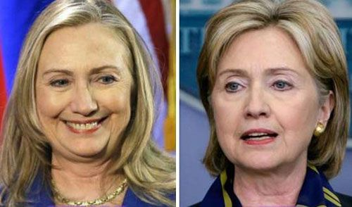Hillary Clinton Plastic Surgery Before After Rumor Pictures