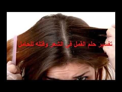 تفسير حلم القمل في الشعر وقتله للحامل Https Youtu Be Oifcqfllep8 Hair Hair Styles Beauty