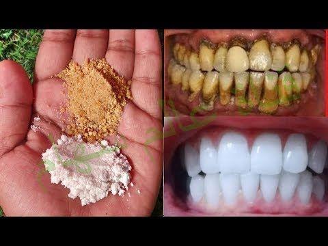 والله ذهبت لطبيب اسنان وتعجب بأسناني سري البسيط 2 دقائق لتبيض الاسنان علاج الاصفراراسقاط جيرسني Health And Wellness Center Natural Health Tips Health Skin Care