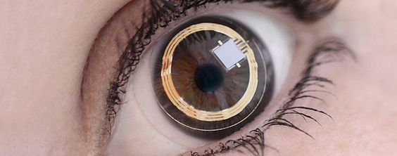 Lente de contato com sensor para monitorização 24h da pressão intraocular / Contact lens sensor for 24h intraocular pressure monitoring