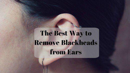 Lernen Sie Mit Diesen Einfachen Tipps Wie Sie Mitesser In Den Ohren Schnell Zu Hause Loswerden Blackheadpeelmas In 2020 Pickel Loswerden Mitesser Entfernen Mitesser