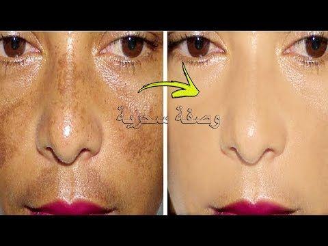 وصفة 7 أيام التي يبحت عنها الجميع لعلاج الكلف في الوجه بقع وكلف عشرين سنة ستزول في أسبوع فقط Youtube Nose Ring Incoming Call Screenshot Movie Posters
