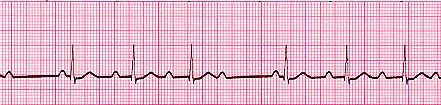 Second-degree atrioventricular block, type 1. Some, but not all, atrial beats are getting through to the ventricles.  There is progressive elongation the the P-R intervals until on P wave is completely dropped.  These are usually due to reversible ischemia of the AV node, often associated with acute myocardial infarction. The ischemic node is slow to recover after each depolarization, which results in longer and longer nodal delay until one impulse isn't conducted. Treatment rarely needed.