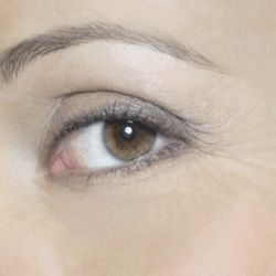 Best Home Remedies For Eye Wrinkles