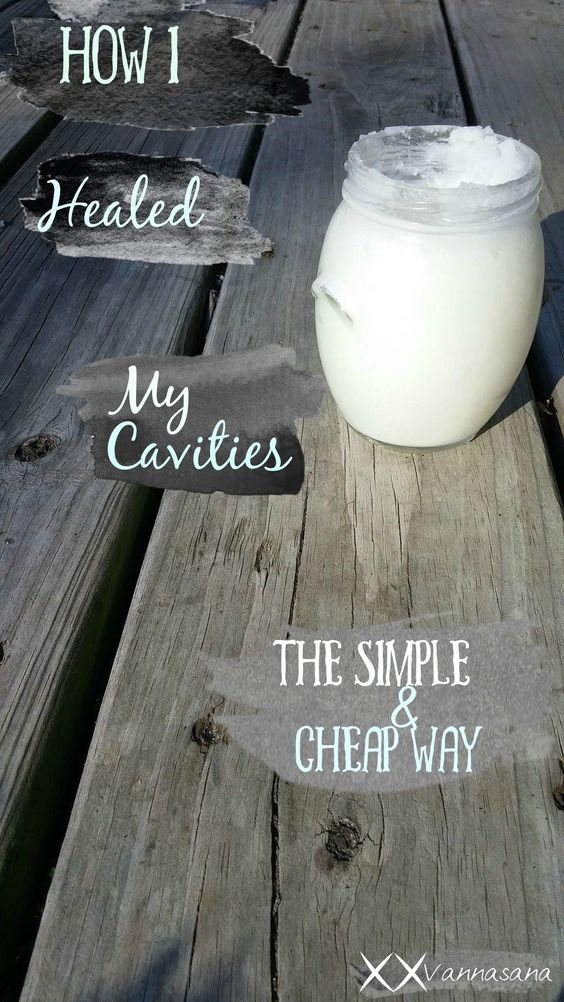 how i healed my cavities naturally the simple and cheap way