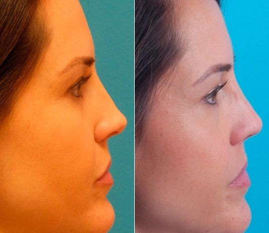 Is Revision Rhinoplasty Right For You In 2020 Rhinoplasty Nose Surgery Nose Job