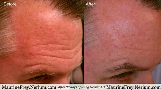 Nerium Age-Defying Treatment.  Do you have any of these skin problems?  -Fine Lines and Wrinkles  -Discoloration  -Uneven Skin Texture  -Enlarged Pores  -Aging Skin  -Sun Damaged Skin  Nerium Age-Defying Treatment can help. www.MaurineFrey.Nerium.com  #skincare, #natural, #custom, #beauty, #moisturizer, #faceCream, #acne, #wrinkles, #skinProblems