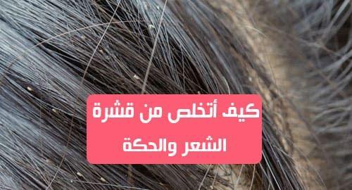 كيف أتخلص من قشرة الشعر والحكة قشرة الشعر هي حالة منتشرة جدا بين النساء والرجال ايضا وذلك بسبب التقشير المفرط لفروة الرأس وهذا يسبب احراج في بعض الاحيان عندما
