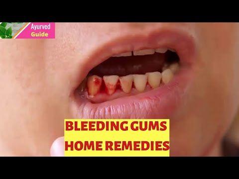 Gingivitis Bleeding Gums Swollen Gums Gum Disease How To Stop Bleeding Gums Best Home Remedies Youtube Bleeding Gum Swollen Gum Gum Disease