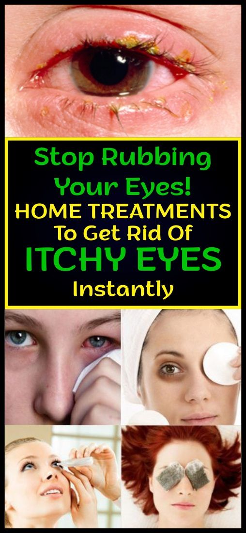 How To Get Rid Of Red Eyes From Allergies Fast