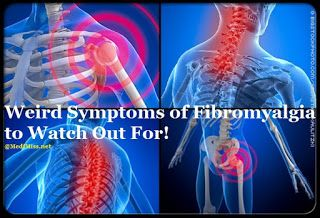 Weird Symptoms of Fibromyalgia to Watch Out For!