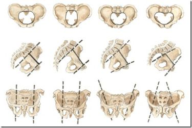 Shapes of female pelvis[5]