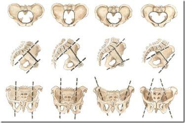 Shapes of female pelvis[5]