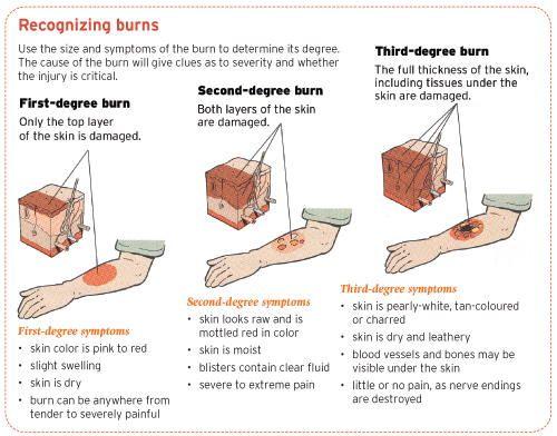 How To Treat A Burn Ent Wellbeing Sydney Burns Nursing Burn Injury Wound Care