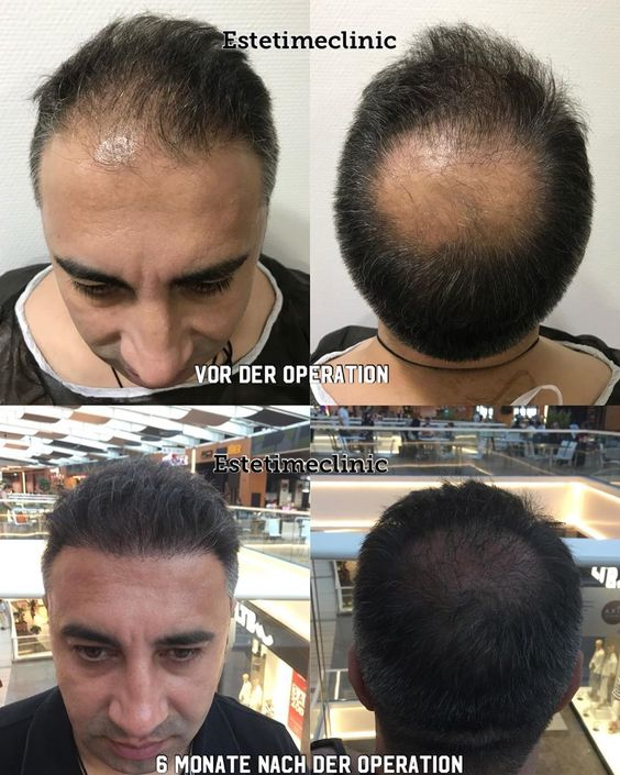 Estetimeclinic Sacekimi Hairtransplant Haartransplantation Grefedecheveux Trasplatedecabelo Trapiantodicapelli Haartransplant Hair Transplant Haar Hair