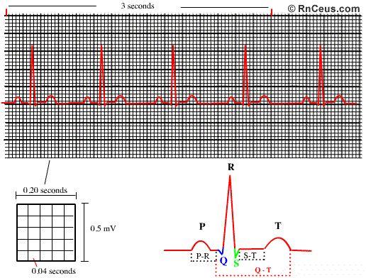 Share your heart arrhythmia rhythm strip readings something is
