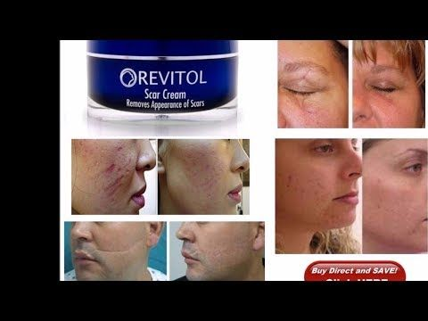 Best Scar Removal Cream Ever Revitol Scar Removal Cream Reviews