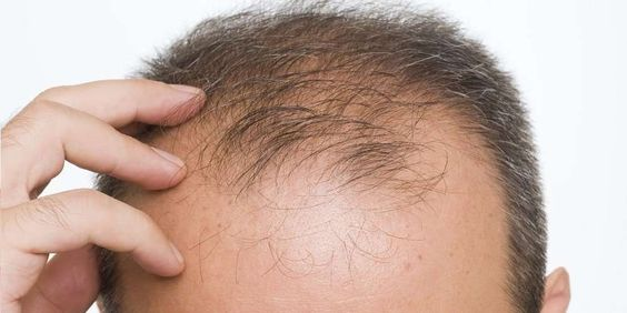 Reasons of BALDNESS at young age.
