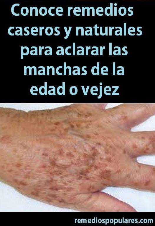 Remedios caseros para las manchas de la piel en las piernas