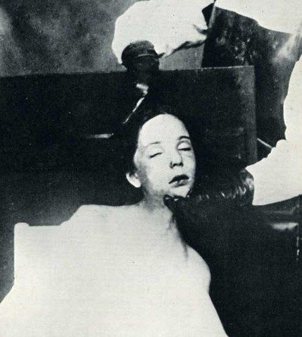 Helga Goebbels after autopsy
