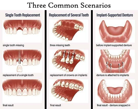 types of dental implant