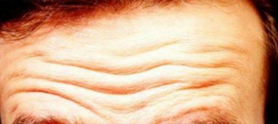 Cómo eliminar las Arrugas de la frente de forma natural…