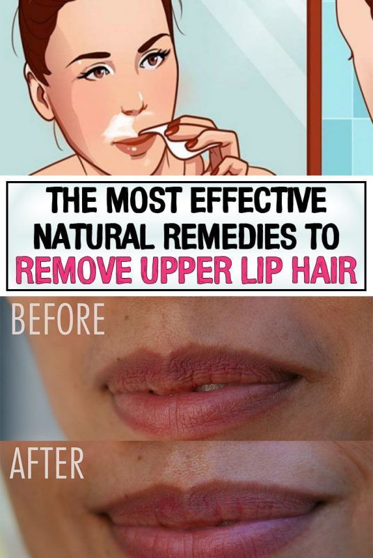 How To Get Rid Of Upper Lip Hair Baby