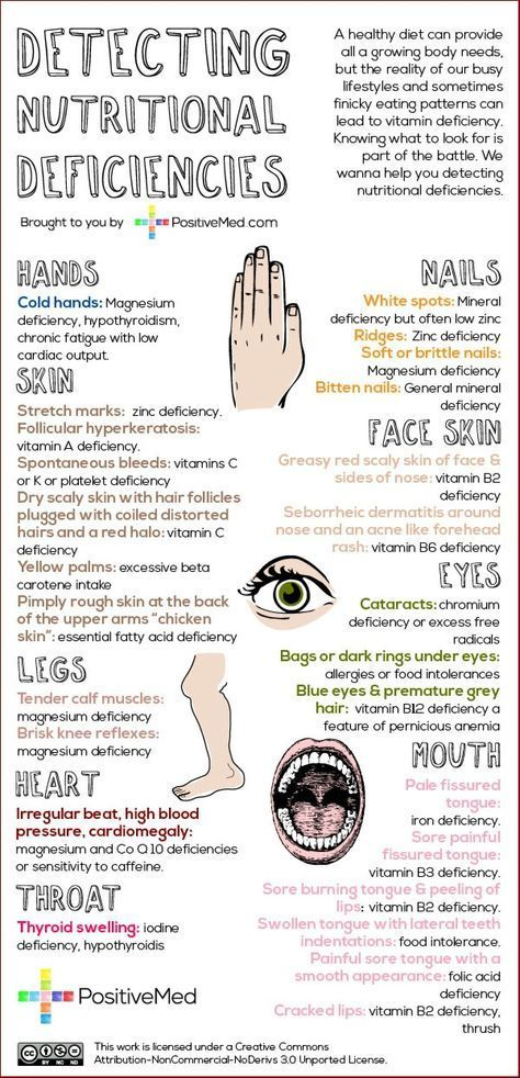 Detecting Nutritional Deficiencies. Eat Healthy! #healthy