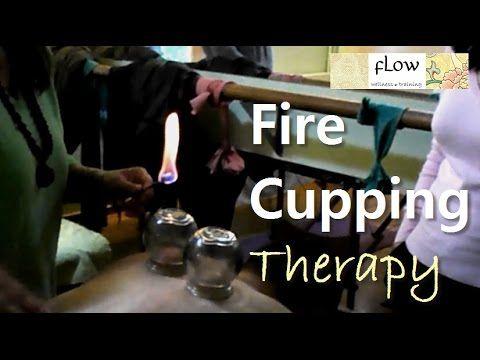 Βεντουζοθεραπεία-όλες οι τεχνικές - Fire Cupping-all techniques