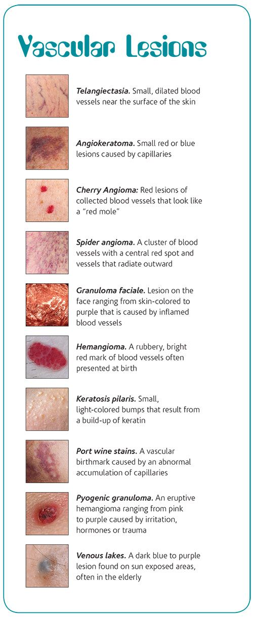 An Esthetician S Guide To Vascular Lesions Skin Aesthetics Esthetician Medical Esthetician