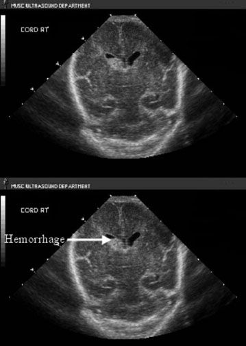 Ultrasound Photos Of Baby Girl: Intraventricular Hemorrhage, Grade II- Cranial US Coronal