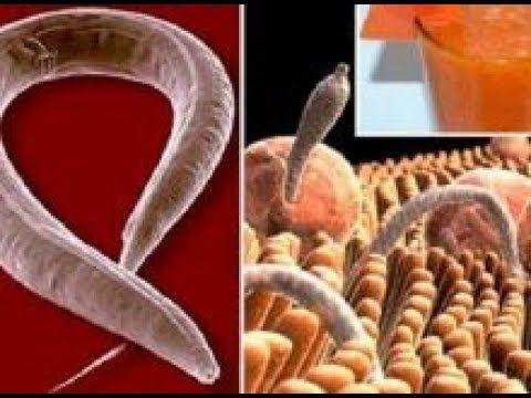 infección por ameba de la piel