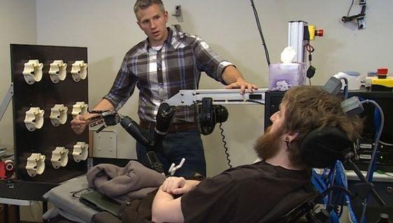 Kollarındaki ve parmaklarındaki dokunma hissini kaybeden adama uygulanan ameliyat, dünyada bir ilkin de gerçekleşmesine vesile oldu.    ...