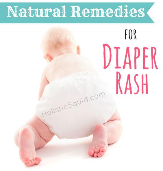 Natural Diaper Rash Treatment For Cloth Diapers