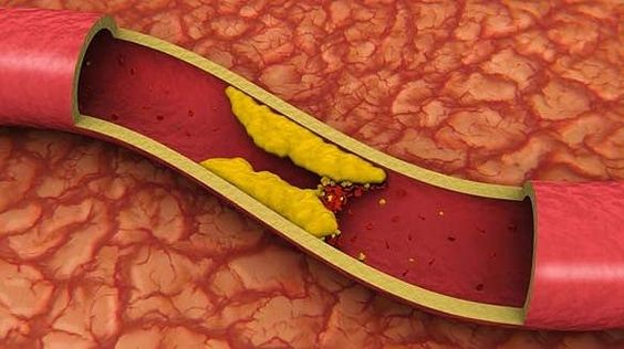 Resultado de imagen de colesterol malo alto: