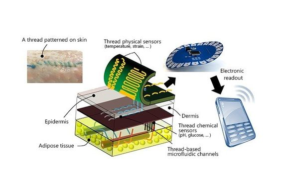 New 'smart' stitches may give doctors diagnostic data on your wound