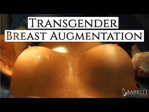 Augmentation transgender breast Transgender Breast